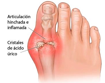 que sintomas da el acido urico en la rodilla